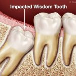 Guide To Impacted Wisdom Teeth Symptoms, Cause, Treatment