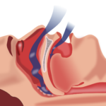 5 Ways Sleep Apnea Can Affect Your Health